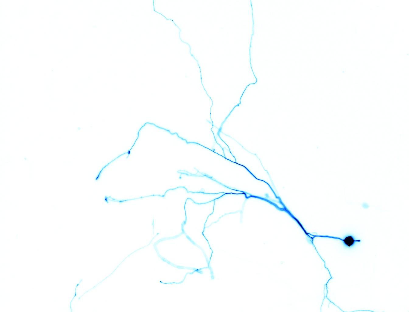 Blue Neuron