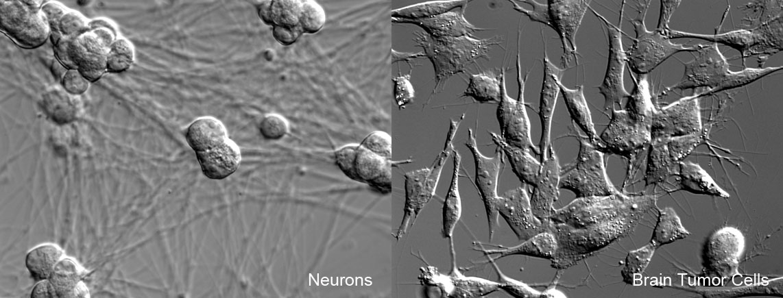 NeuronsBrainTumor1 copy